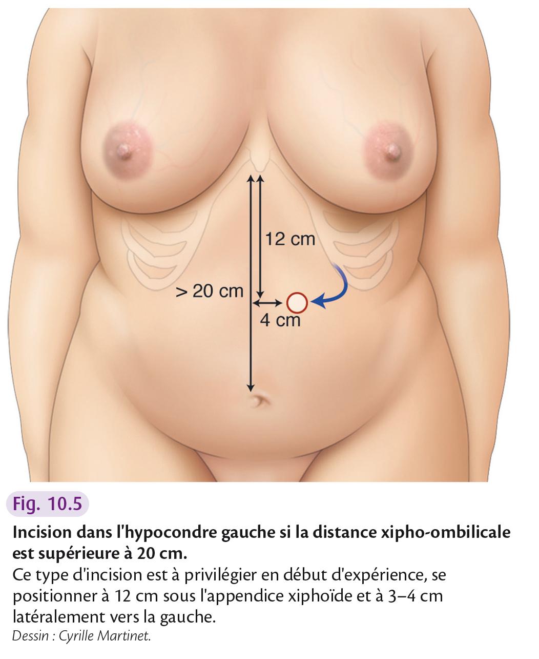 Incision dans l'hypocondre gauche si la distance xipho-ombilicale est supérieure à 20 cm.