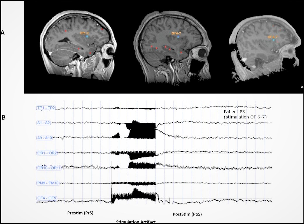 Combined image showing the three patients' cranial scans where the localization of the contacts inducing an ecstatic aura. Bottomg image displays the corresponding EEG traces of insular stimulation.