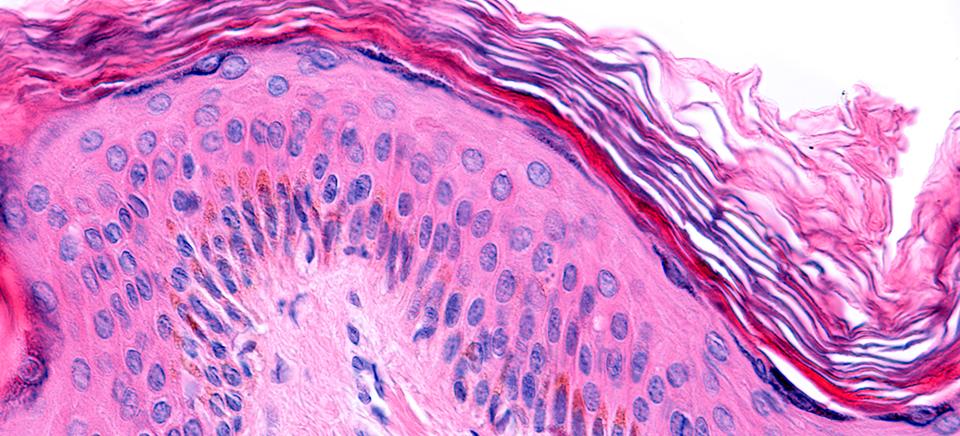 Respuesta inmunitaria epidermis