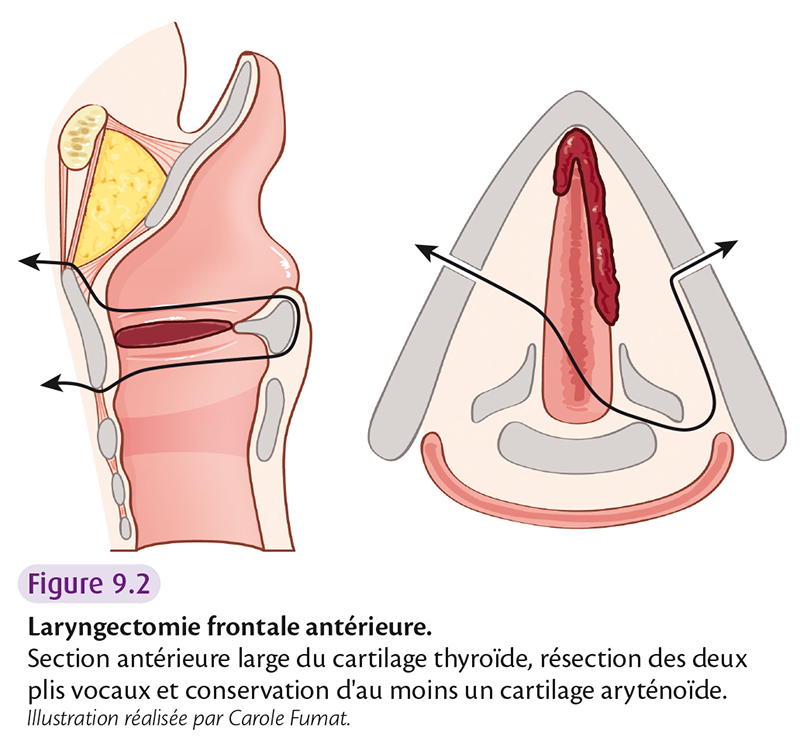 Fig 9.2 Laryngectomie frontale antérieure.