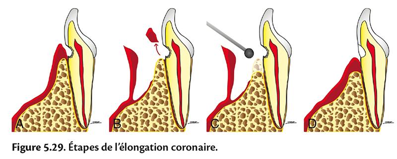 Figure 5.29 . Étapes de l'élongation coronaire.