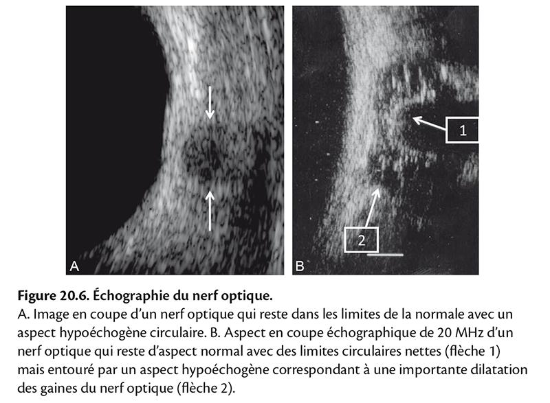 Figure 20.6 . Échographie du nerf optique