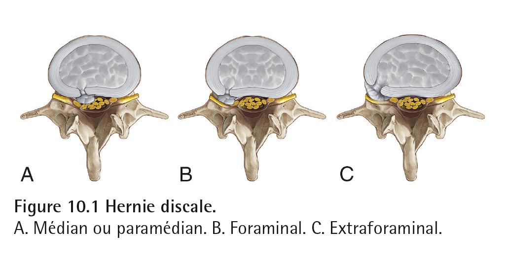 Figure 10.1 Hernie discale. A. Médian ou paramédian. B. Foraminal. C. Extraforaminal.