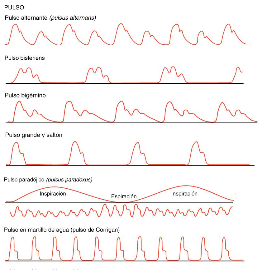 Anomalías del pulso