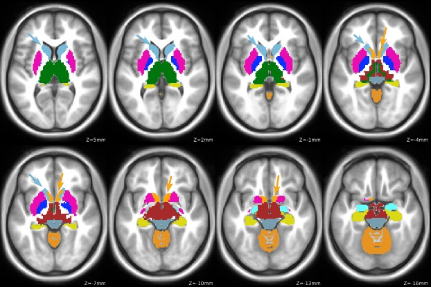 Study Links Brain Function Changes To Genetic Risk In Attention Deficit Hyperactivity Disorder Diagnosis