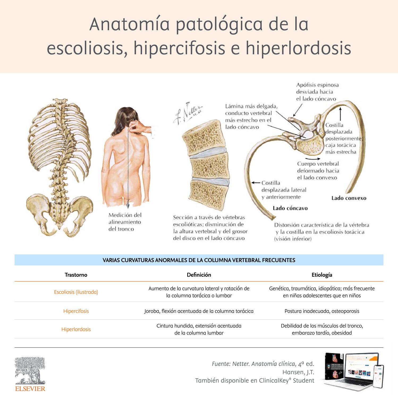 Infografia_escoliosis-hipercifosis-e-hiperlordosis.jpg