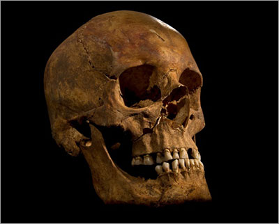 Skull of King Richard III (Copyright © University of Leicester)
