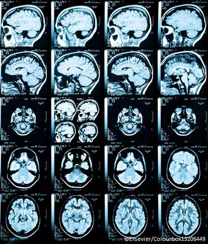 Neurologie.jpg