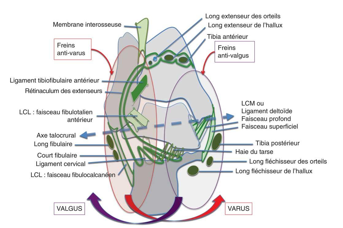 Coupe coronale schématique au niveau du sinus tarsien. LCL : ligament collatéral latéral ; LCM : ligament collatéral médial.