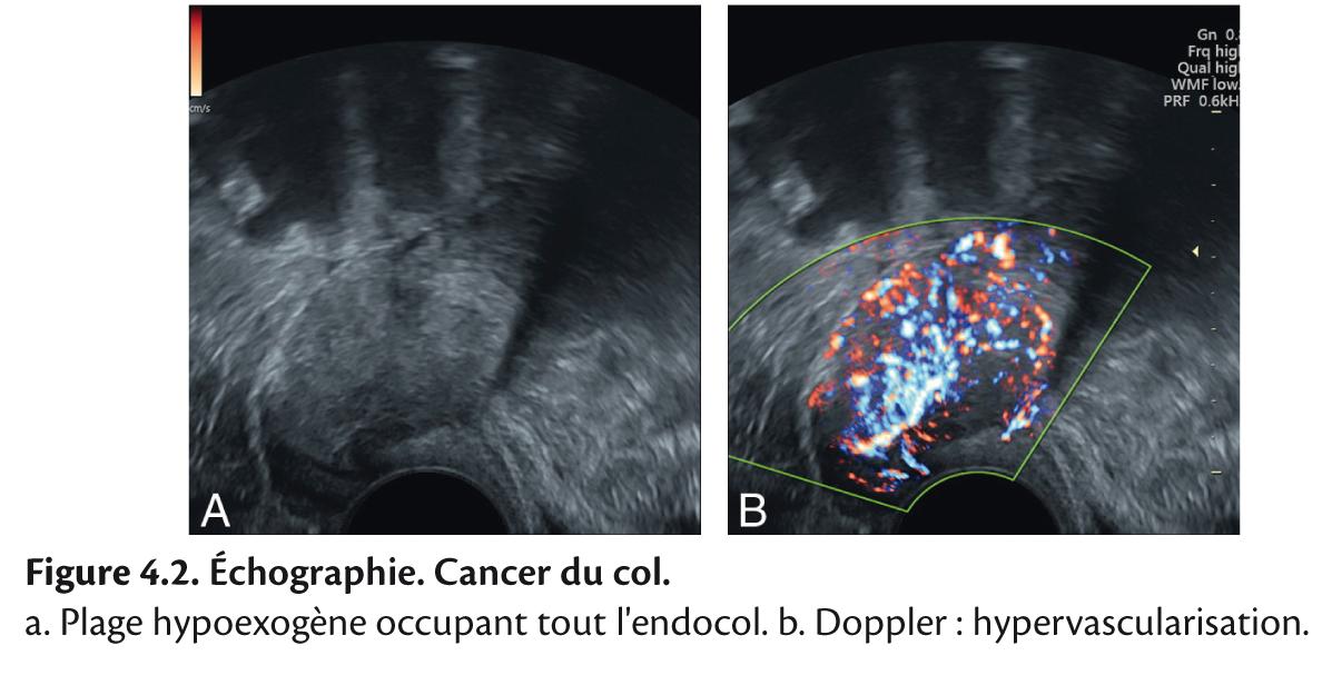 Figure 4.2. Échographie. Cancer du col.