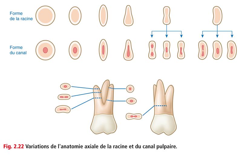 Fig. 2.22 Variations de l'anatomie axiale de la racine et du canal pulpaire.