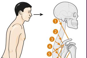 Posture et équilibre : deux notions différentes