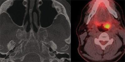 Effets biologiques associés aux rayons X