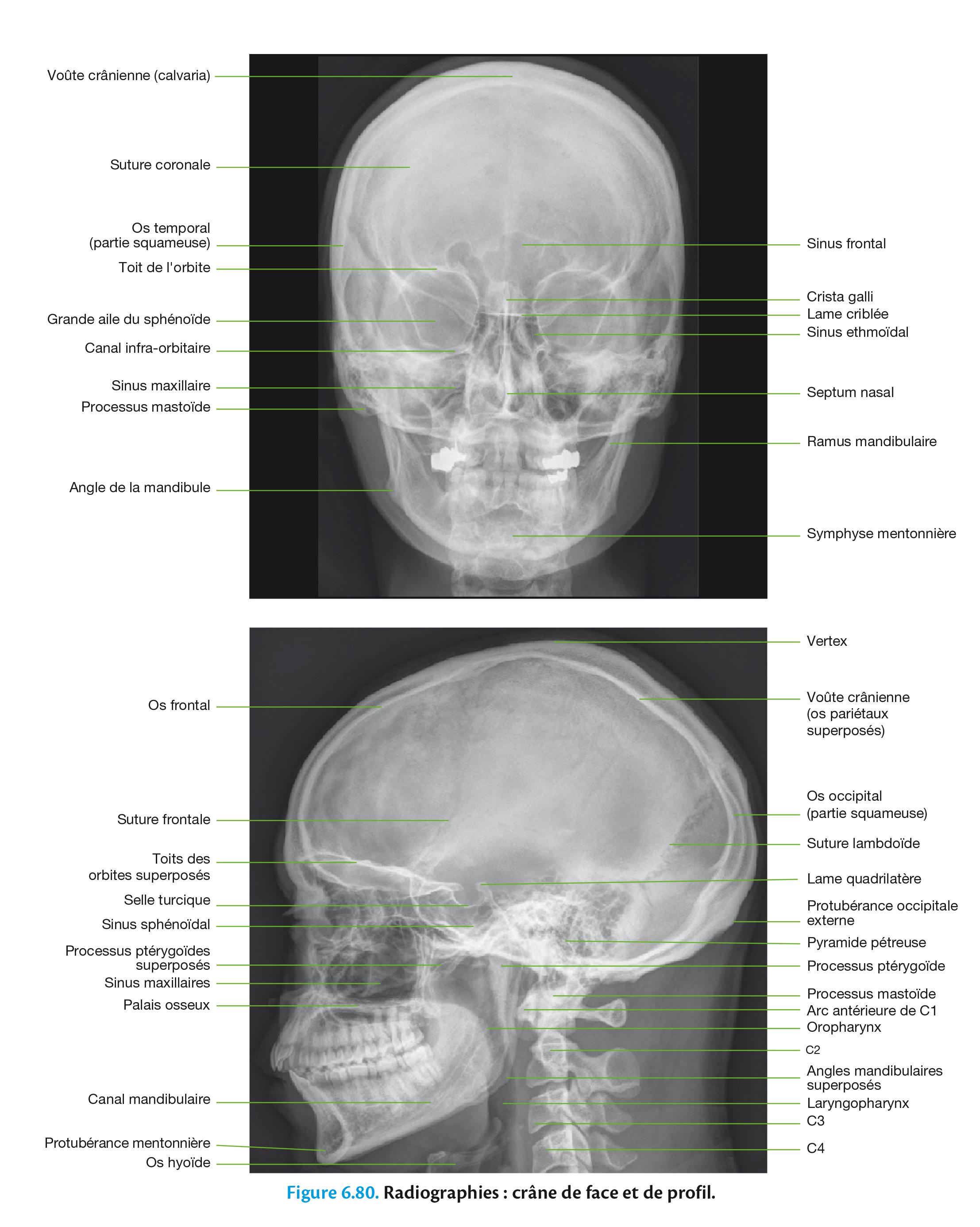 Figure 6.80. Radiographies : crâne de face et de profil.
