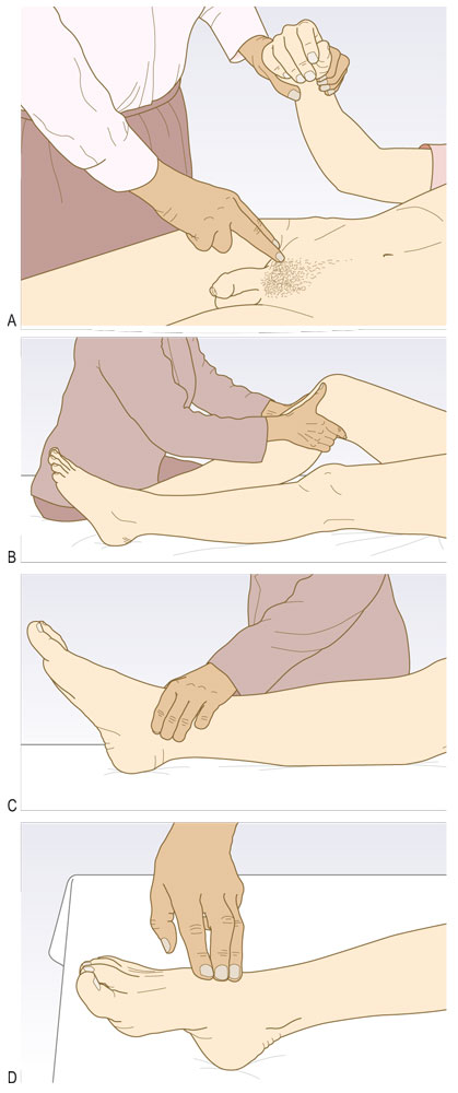 Examen des artères fémorale, poplitée, tibiale postérieure et pédieuse.