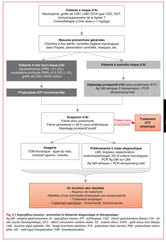 Aspergillose invasive : prévention et démarche diagnostique et thérapeutique