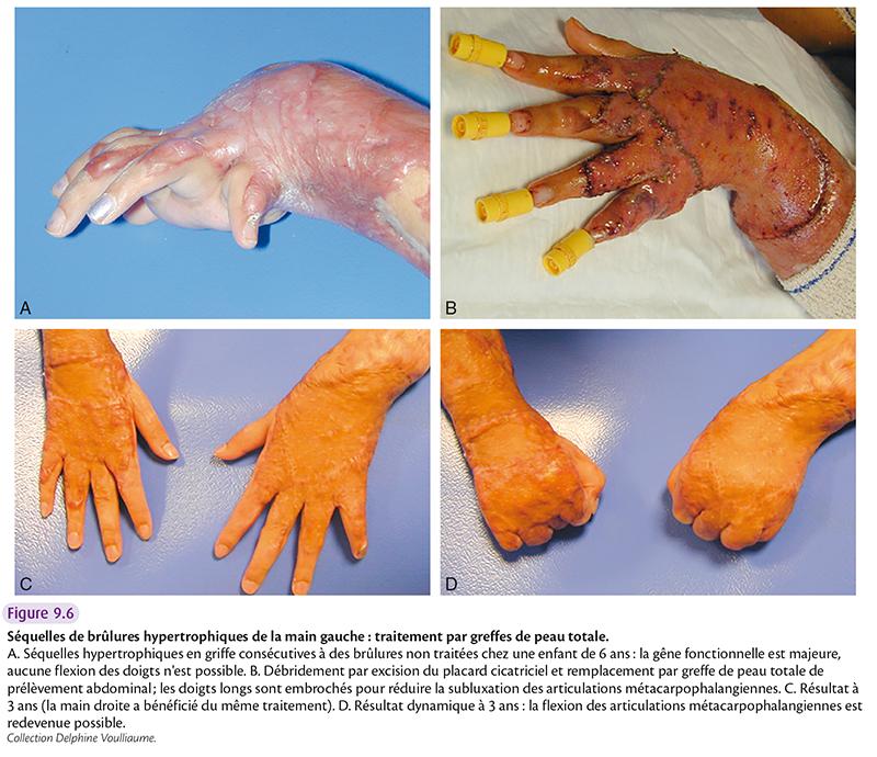 Séquelles de brûlures hypertrophiques de la main gauche : traitement par greffes de peau totale. A. Séquelles hypertrophiques en griffe consécutives à des brûlures non traitées chez une enfant de 6 ans : la gêne fonctionnelle est majeure, aucune flexion des doigts n'est possible. B. Débridement par excision du placard cicatriciel et remplacement par greffe de peau totale de prélèvement abdominal ; les doigts longs sont embrochés pour réduire la subluxation des articulations métacarpophalangiennes. C. Résultat à 3 ans (la main droite a bénéficié du même traitement). D. Résultat dynamique à 3 ans : la flexion des articulations métacarpophalangiennes est redevenue possible. Collection Delphine Voulliaume.