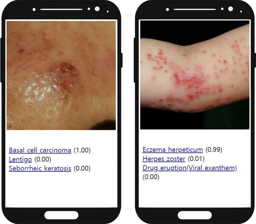Sample screenshots of skin diseases on two mocked-up smartphone screens, side-by-side.