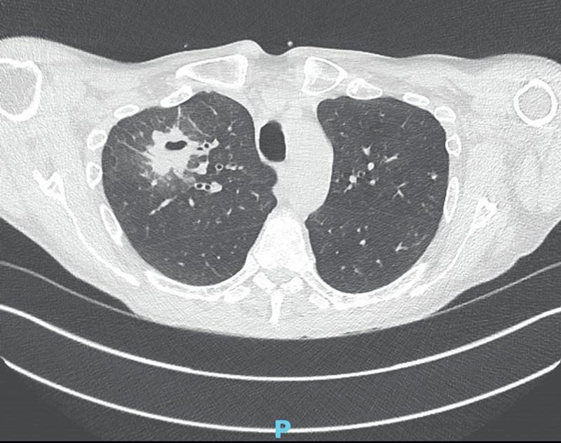 TDM : image de nodule excavé évoquant un abcès chez un malade COVID–