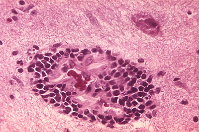 This micrograph depicts the histopathologic changes of rabies encephalitis using an H&E stain. Note the perivascular cuffing due to the perivascular accumulation of inflammatory cell infiltrates, i.e. lymphocytes and polymorphonuclear leukocytes. (Source: CDC/Dr. Daniel P. Perl, 1971)