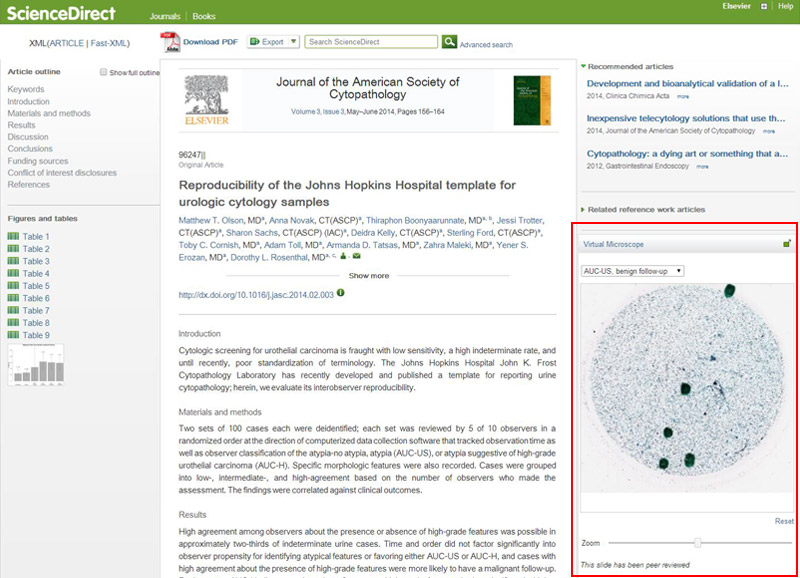 The Virtual Microscope is integrated with ScienceDirect and the HealthAdvance journal sites, and appears alongside articles that contain high resolution slide images. It was created by a cross-team initiative at Elsevier using software from Kitware, which has developed a range of 3D viewers for ScienceDirect.
