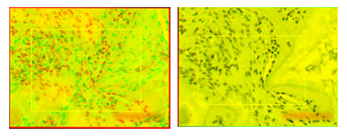 Examples of visual overlays produced from algorithm-based best-fit alignments of sample images (anchored by user-defined ROI in yellow box): two candidate images that do not align (left panel; Pearson correlation 0.02) and two that do align (right panel; Pearson correlation 0.92). (Source: original images from Qin et al paper in Cell Stem Cell, published in 2013 and retracted in 2015)