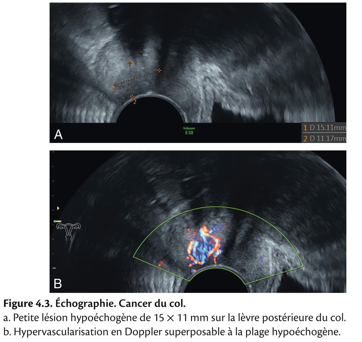 Figure 4.3. Échographie. Cancer du col.