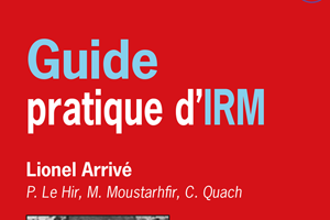 IRM : Cancer de la prostate