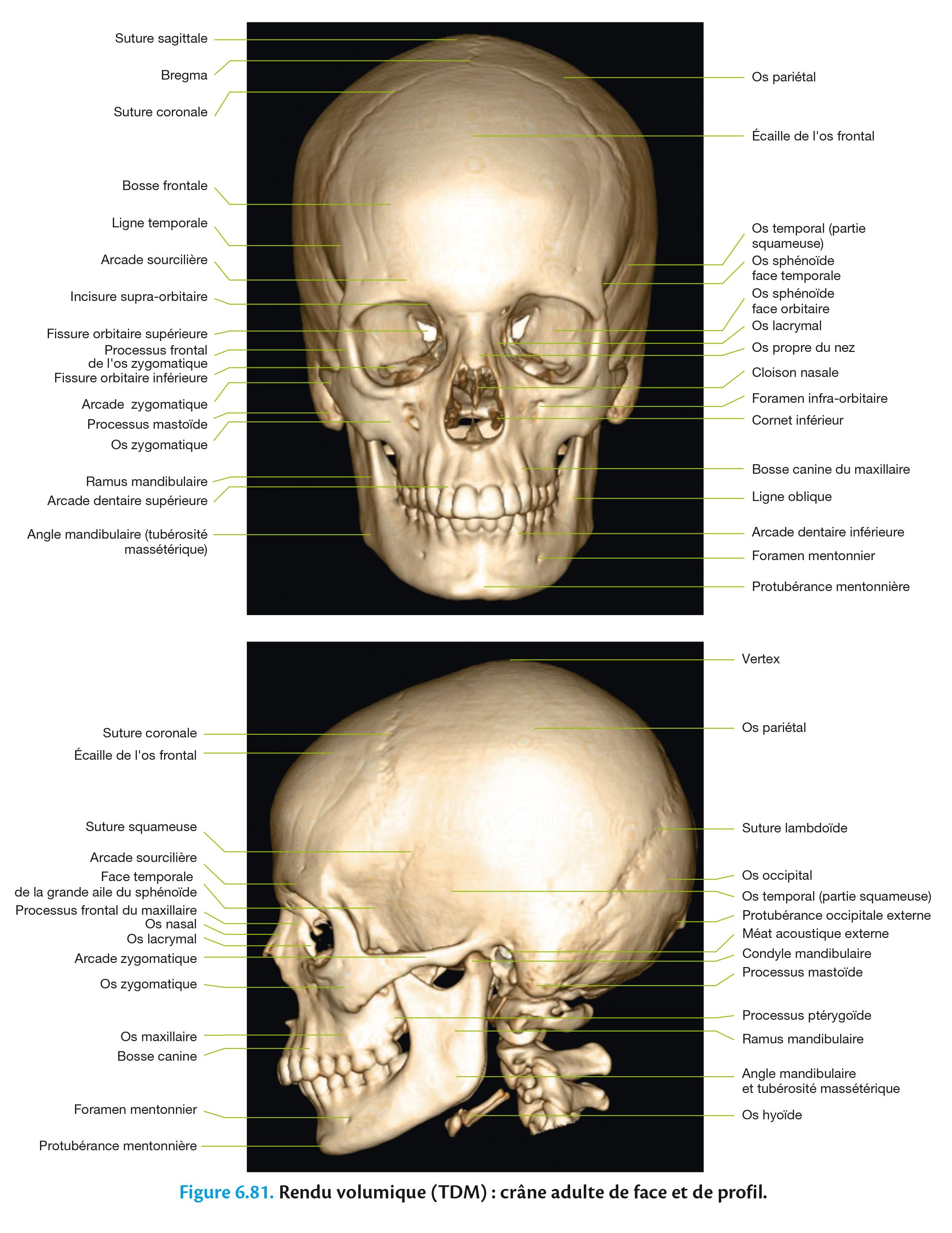 Figure 6.81. Rendu volumique (TDM) : crâne adulte de face et de profil.