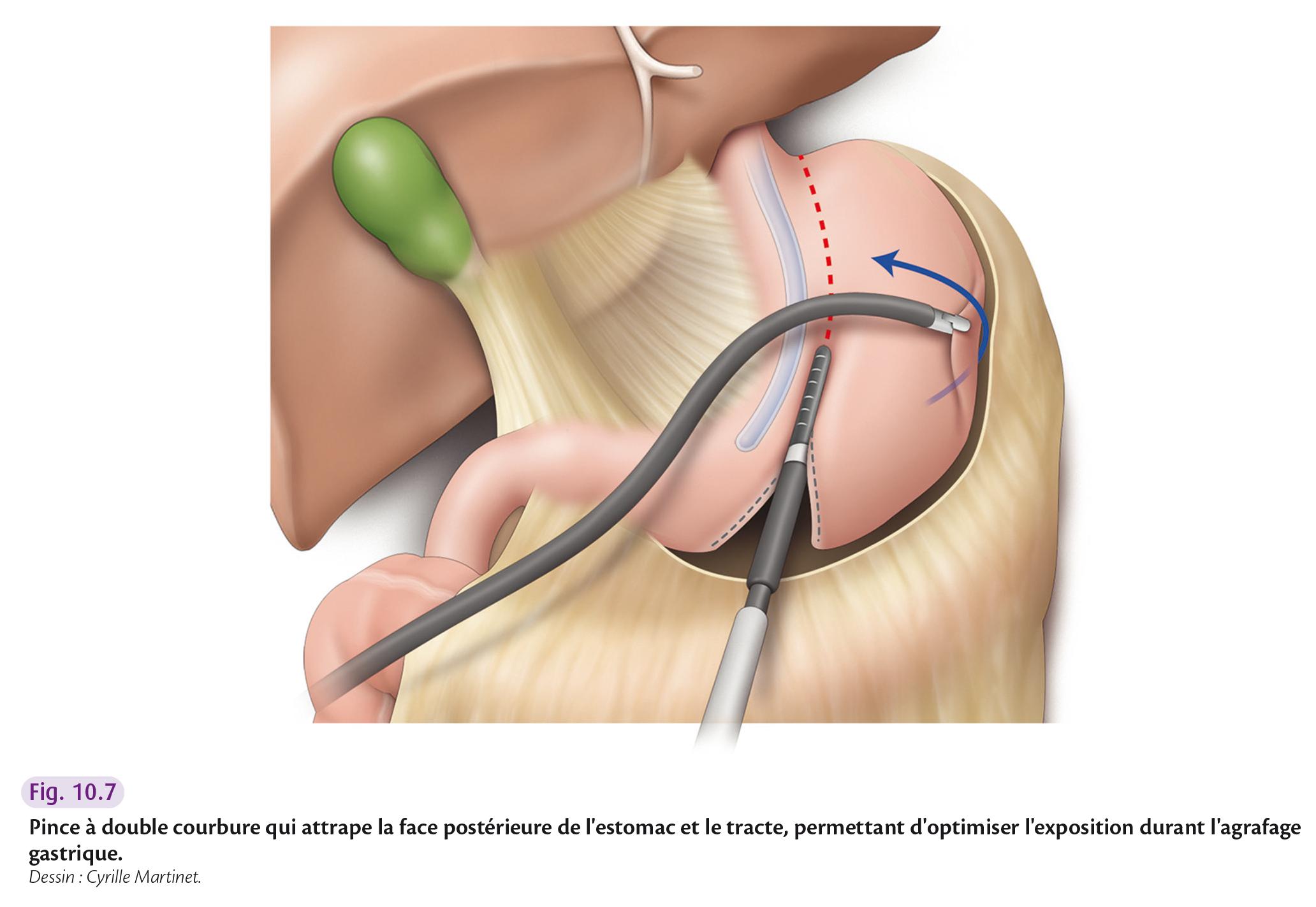 Pince à double courbure qui attrape la face postérieure de l'estomac et le tracte, permettant d'optimiser l'exposition durant l'agrafage gastrique.