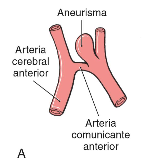 Aneurisma