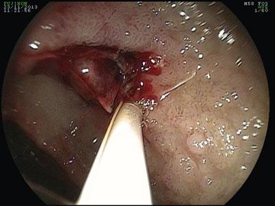 Sclérose endoscopique d'un ulcère du bulbe hémorragique