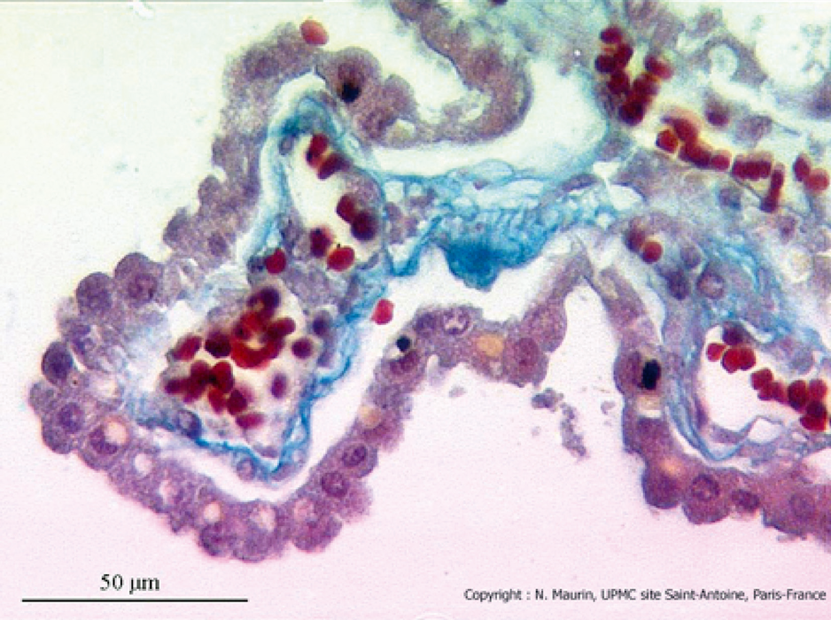 Neurophysiologie plexus choroide