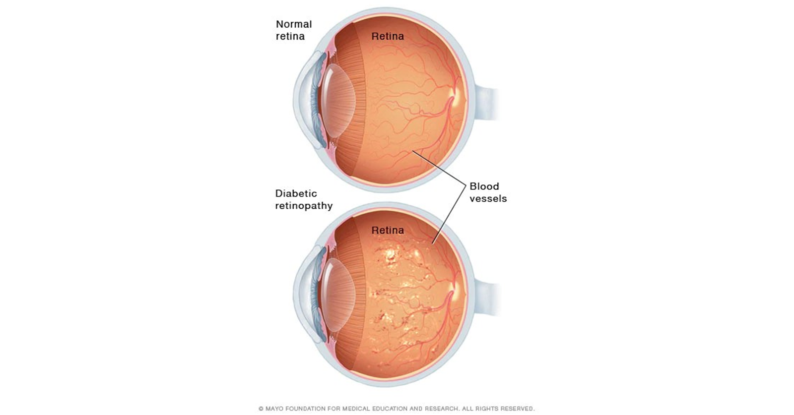 Cross-section image of a normal retina vs retina with diabetic retinopathy. Credit: Mayo Foundation for Medical Education and Research, All Rights Reserved.
