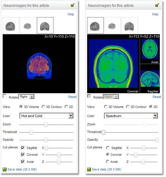 Figure 4: 3D neuroimaging viewer