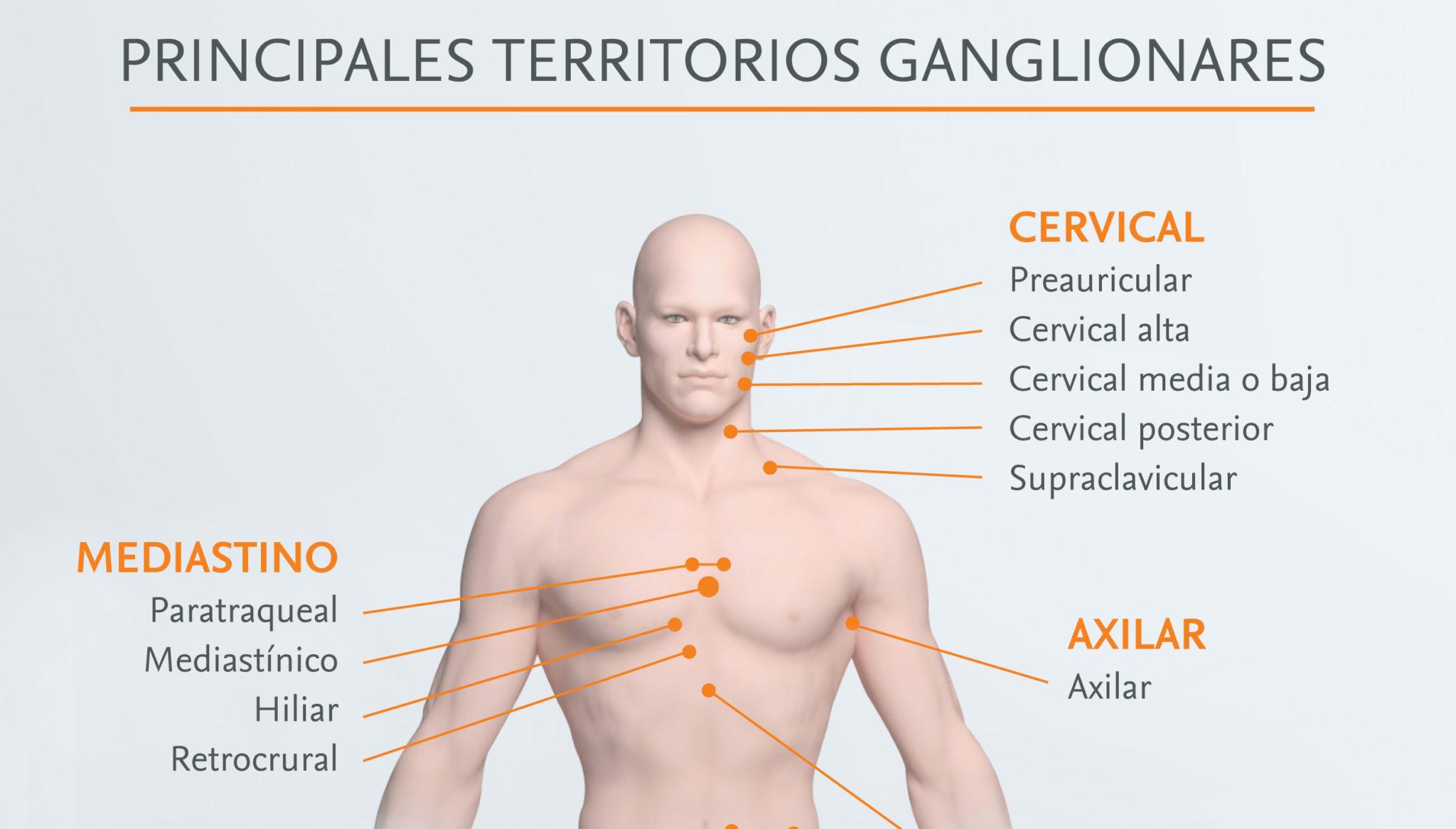 Principal-linfomas.jpg
