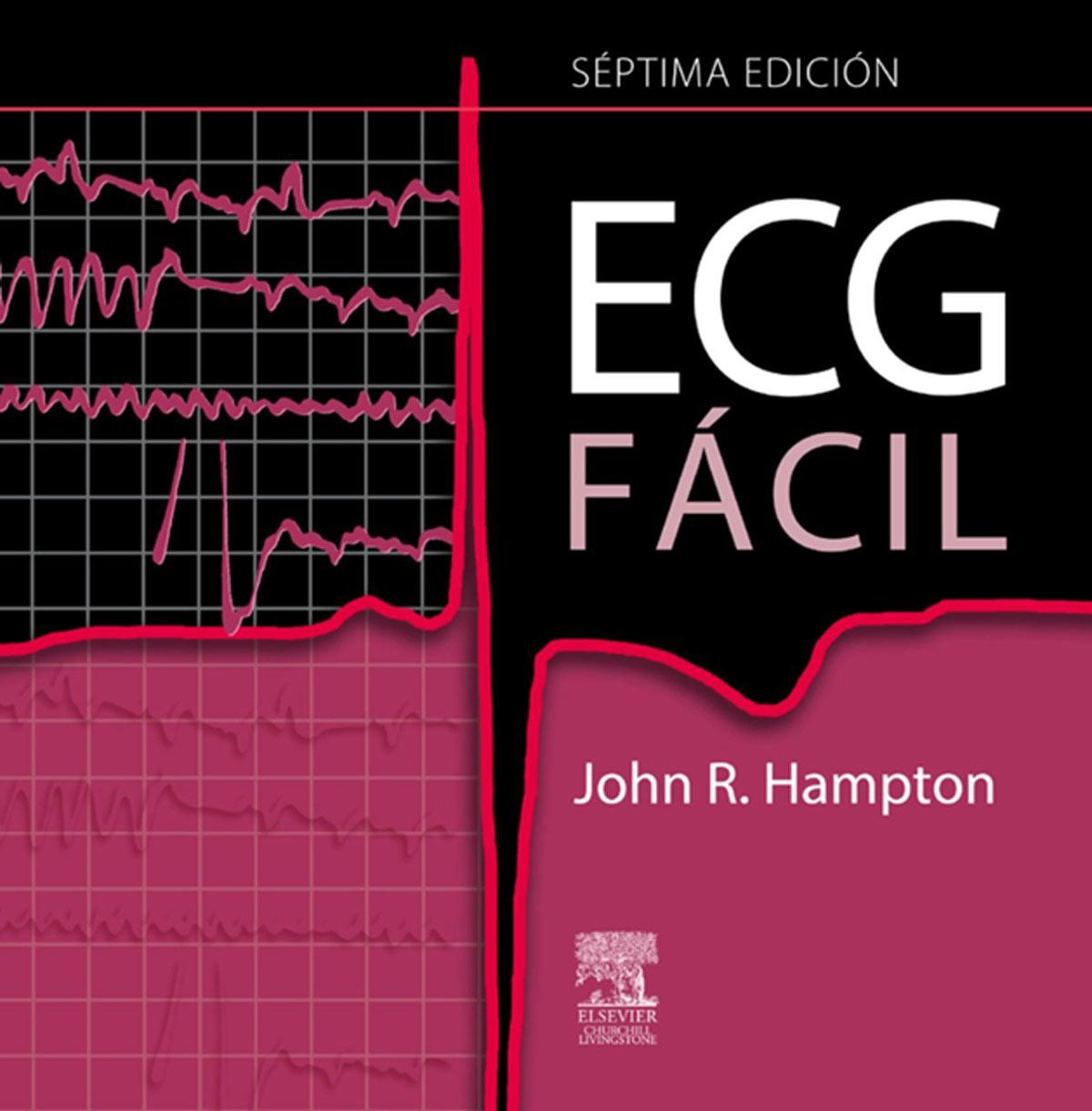 ECG-facil.jpg