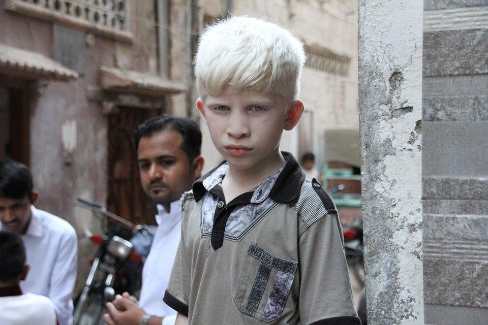 Albinismo: tipos, mentiras y mitos sobre esta alteración genética
