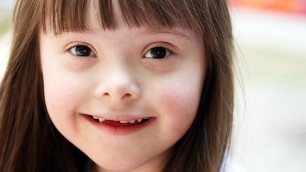 21 de março se aproxima, precisamos falar abertamente sobre a Síndrome de Down