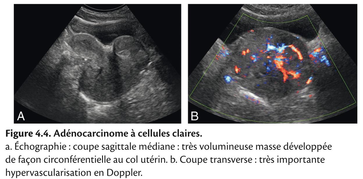 Figure 4.4. Adénocarcinome à cellules claires.