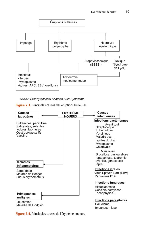 Figure 7.3 . Principales causes des éruptions bulleuses