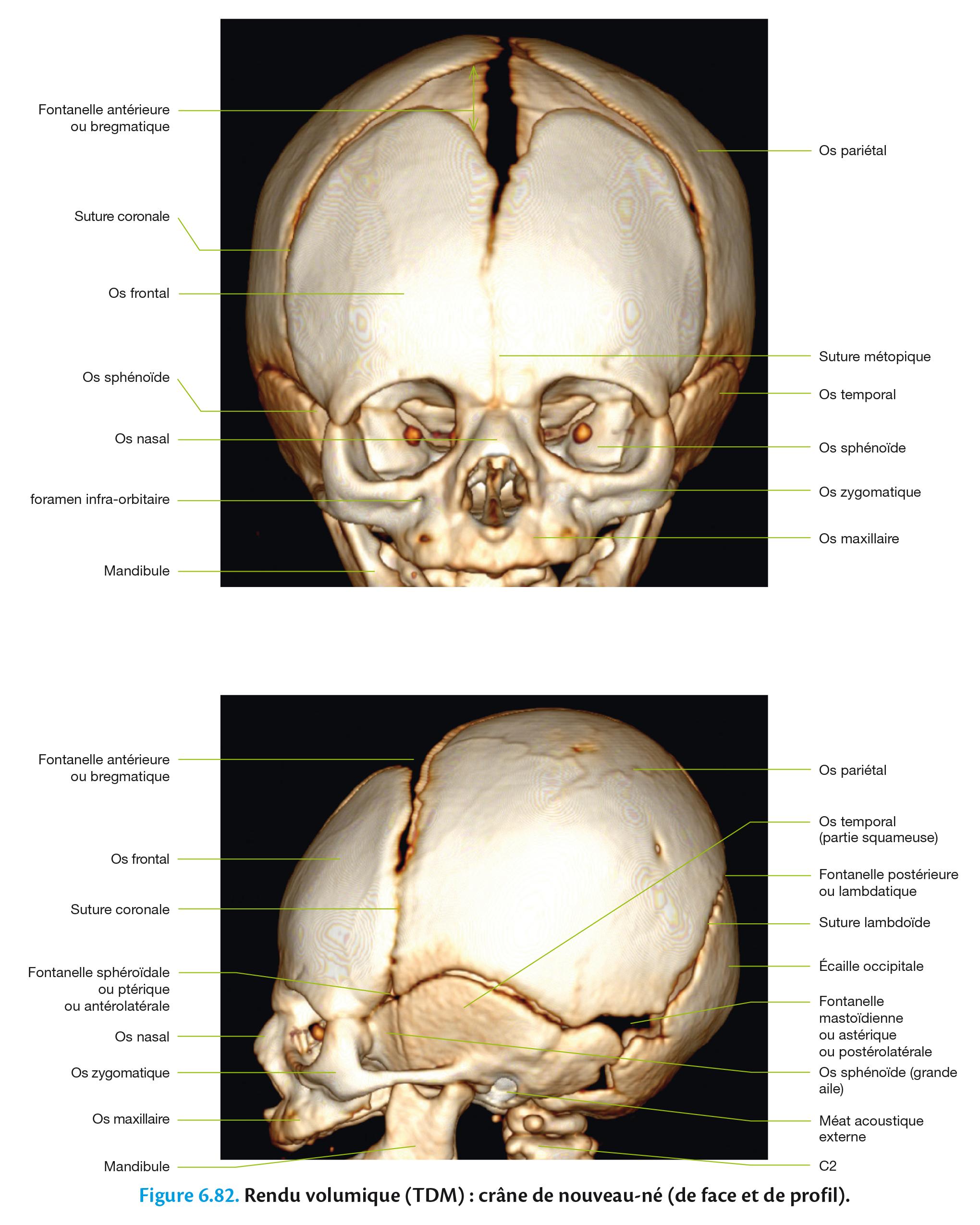 Figure 6.82. Rendu volumique (TDM) : crâne de nouveau-né (de face et de profil).