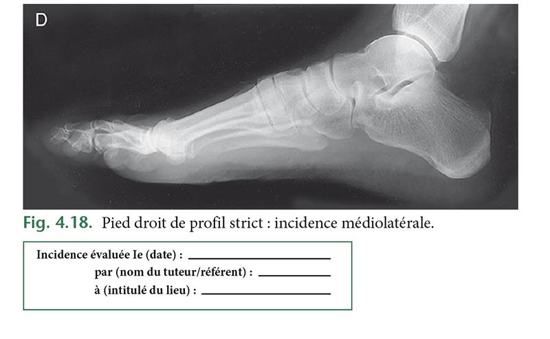 Fig. 4.18. Pied droit de profil strict : incidence médiolatérale.