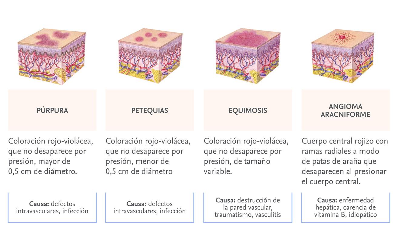 Examen de la piel. Púrpuras, 7 tipos de lesiones y sus causas