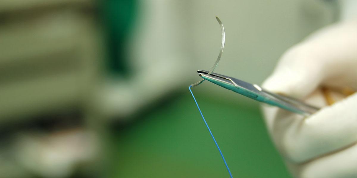 Meine Erfahrungen in der plastischen Chirurgie im Rahmen meines PJ in Kapstadt