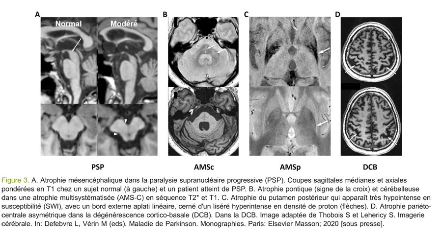Figure 3. A. Atrophie mésencéphalique dans la paralysie supranucléaire progressive (PSP).