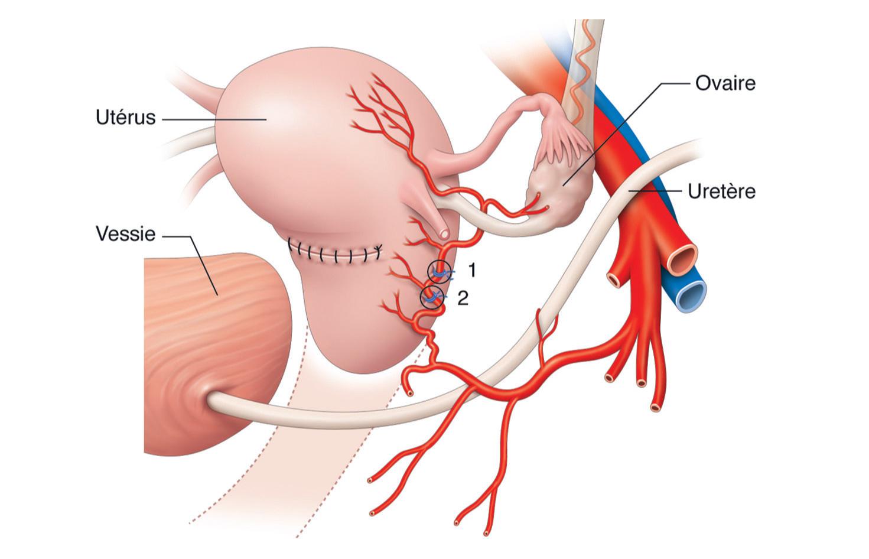 Fig. 8.3: Ligature étagée distale du pédicule utérin