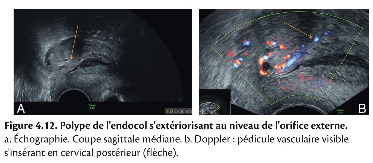 Figure 4.12. Polype de l'endocol s'extériorisant au niveau de l'orifice externe.