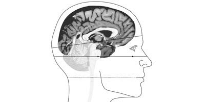 NEUROANATOMIE DESCRIPTIVE Cours, atlas pratique et clés pour l'imagerie médicale