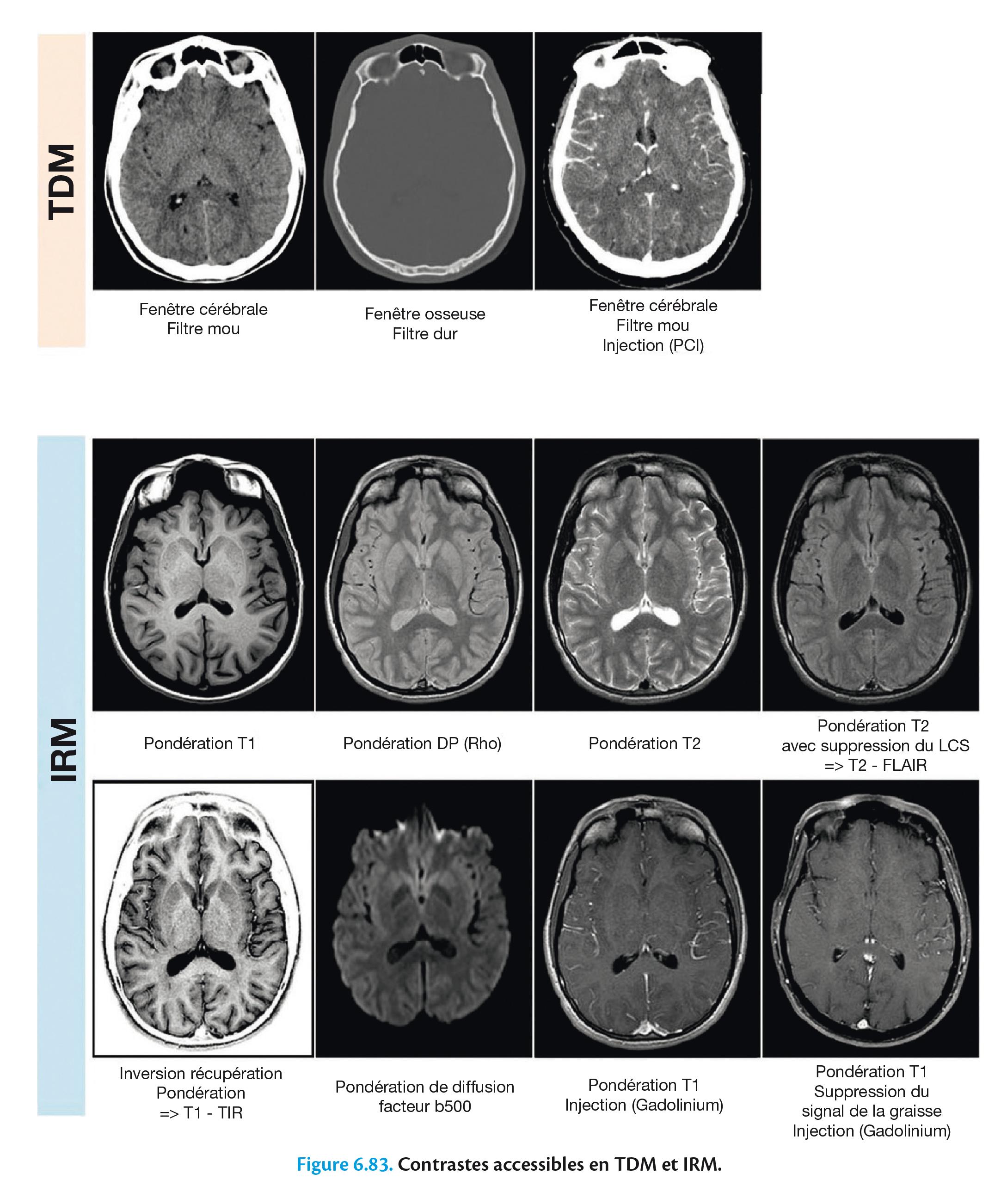 Figure 6.83. Contrastes accessibles en TDM et IRM.